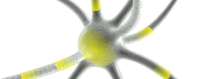 Alzheimer e Demenze